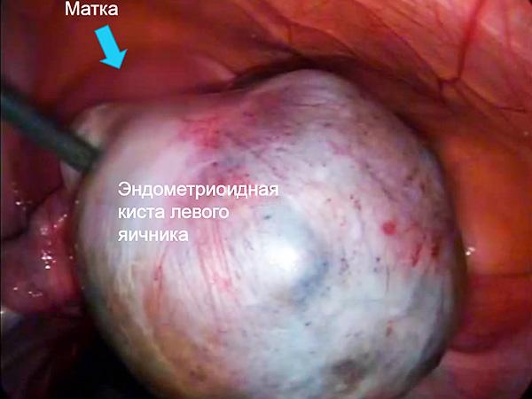 Эндометриоидное образование на левом яичнике во время операции