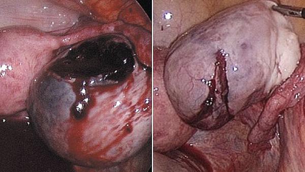 Разрыв кисты с кровотечением