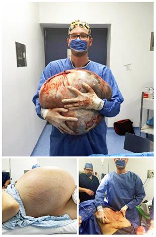 Операция по удалению гигантской кисты яичника