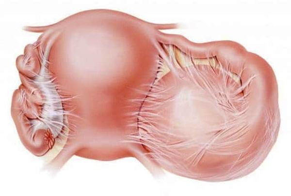 Спаечный процесс в органах малого таза