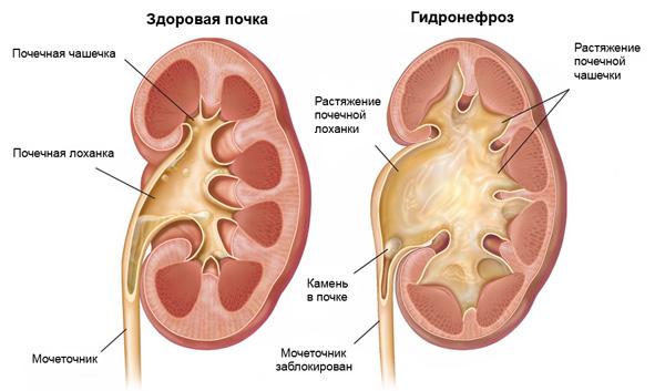 Гидронефроз может быть следствием пережатия мочеточника кистой большого размера
