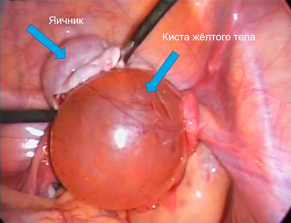 Вид лютеиновой кисты во время операции по ее удалению