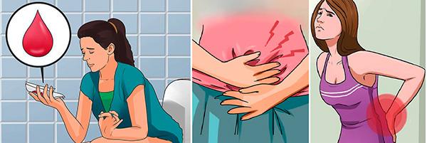Симптомы, соответствующие угрозе прерывания беременности