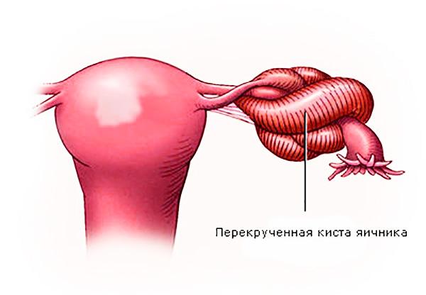 Перекрут кисты яичника может произойти во время беременности