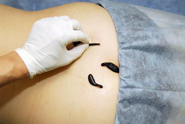 Эффективна ли гирудотерапия в лечении миомы матки, или прибегать к ней не имеет смысла?
