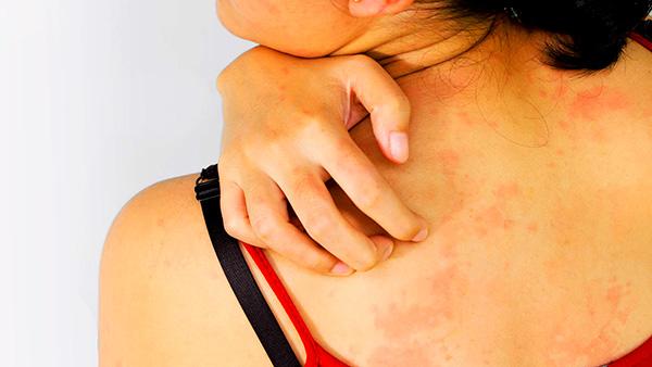Продукты пчеловодства у многих вызывают аллергическую реакцию