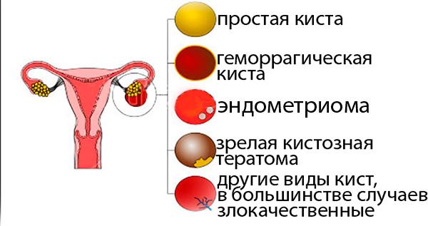 Типы опухолевидных образований яичника