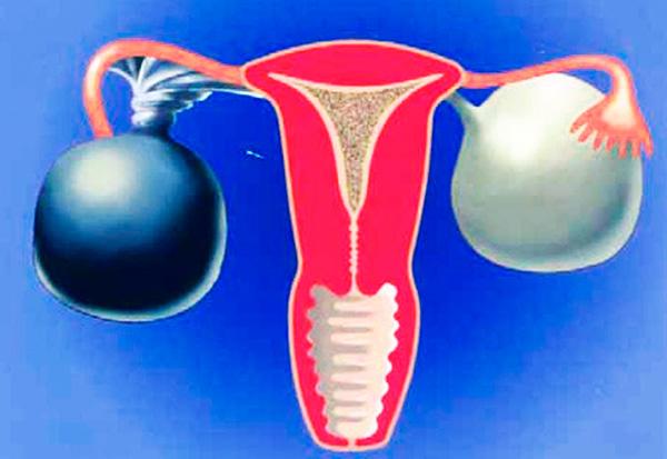 Перекрут кисты яичника приводит к застою крови, что в дальнейшем чревато развитием некроза
