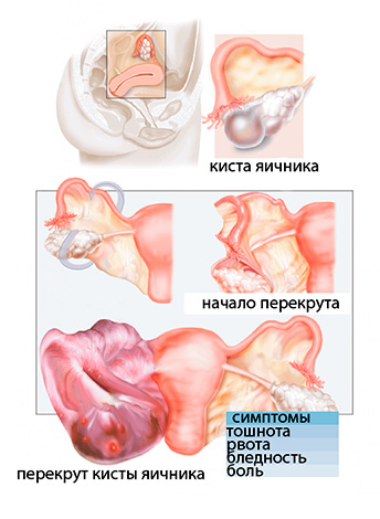 Этапы формирования перекрута кистозного образования яичника
