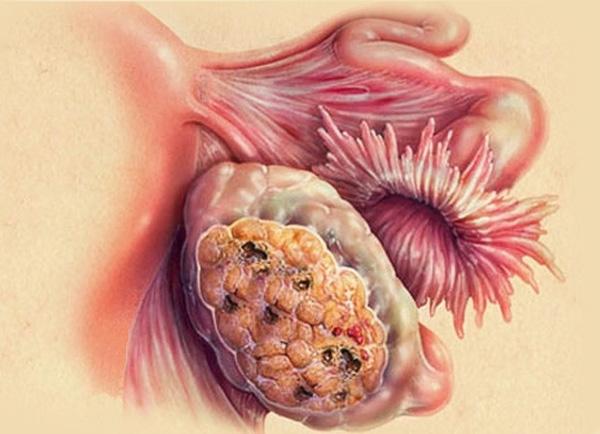 Вероятность перерождения кисты в рак возрастает в период климакса