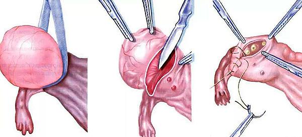 Этапы проведения цистэктомии