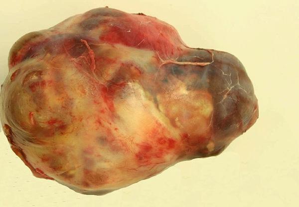 Макропрепарат дермоидной кисты