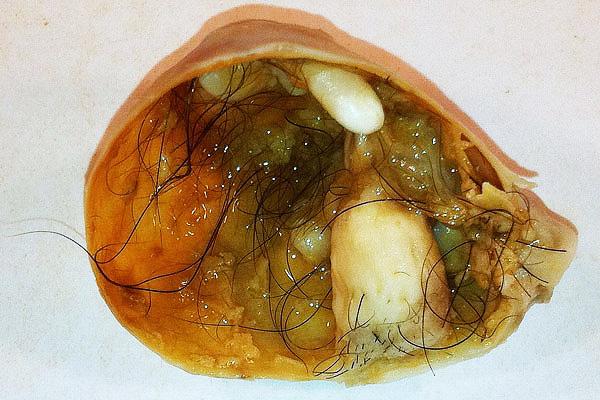 В составе дермоидной кисты могут обнаружиться волосы, зубы