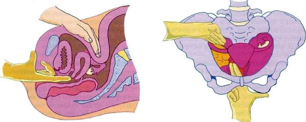 Техника бимануального осмотра яичников