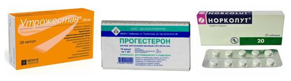 Утрожестан, Норколут, Прогестерон при кисте яичника