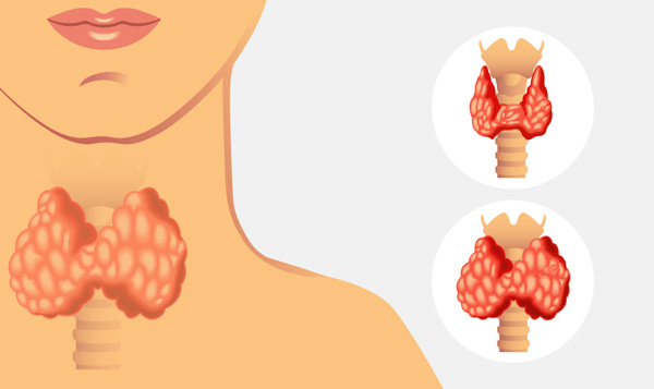 Гипофункция щитовидной железы как фактор риска для возникновения кисты