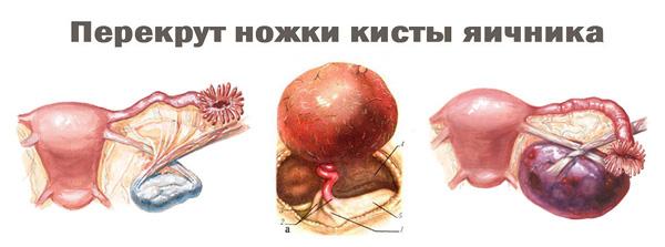 Варианты перекрута ножки кисты яичника