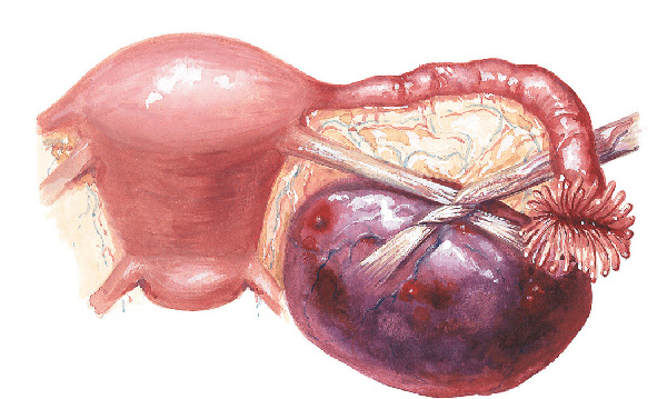 Перекрут ножки кисты опасен развитием некроза и потерей яичника