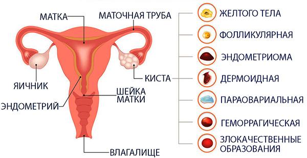 Различные виды кист яичника