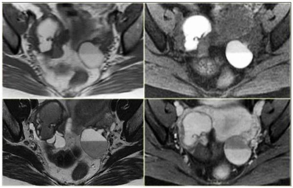 МРТ-снимок кисты яичника