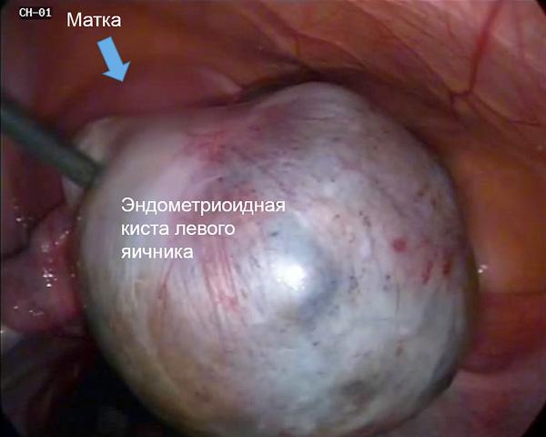 Эндометриоидная киста яичника при лапароскопии