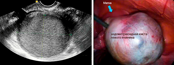 Вид эндометриоидного образования на УЗИ и при лапароскопии