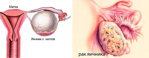 Отличие кисты от рака яичника