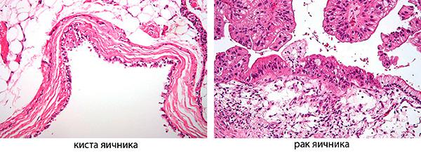 Гистологическое строение кисты и рака яичника