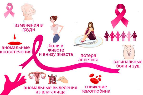Симптомы рака яичника, которые нельзя игнорировать