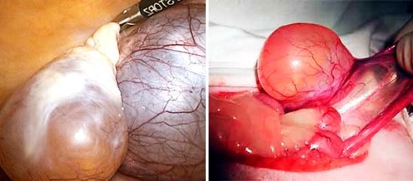 Внешний вид параовариальной кисты во время лапароскопии