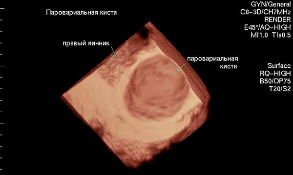 Параовариальная киста яичника на 3D УЗИ-снимке