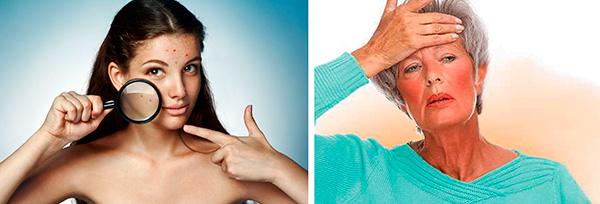 Гормональная перестройка организма в период полового созревания или преклимакса