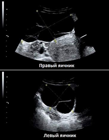 Серозная киста обоих яичников на УЗИ