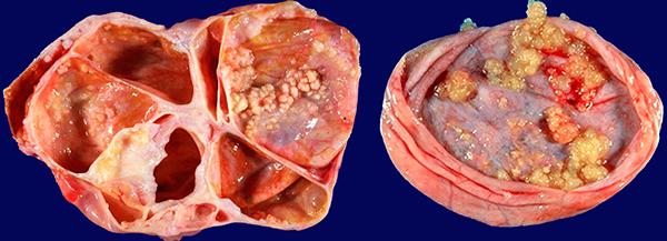 Макропрепарат папиллярной цистаденомы в разрезе