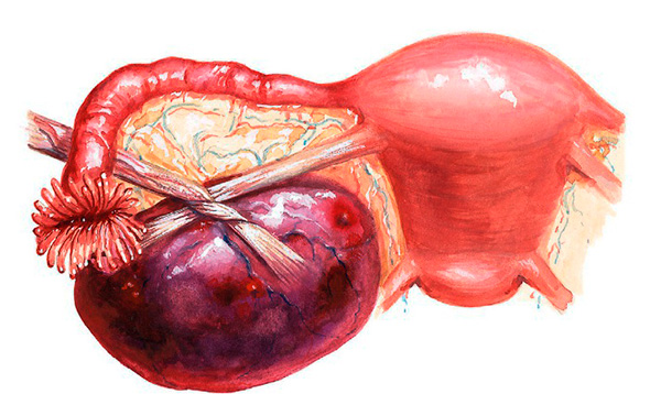 Перекрут кисты яичника без лечения часто приводит к некрозу