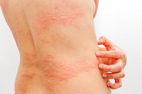 Среди побочных эффектов противовоспалительных препаратов - аллергия
