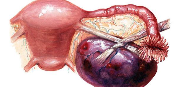 Перекрут ножки кисты яичника требует срочной операции