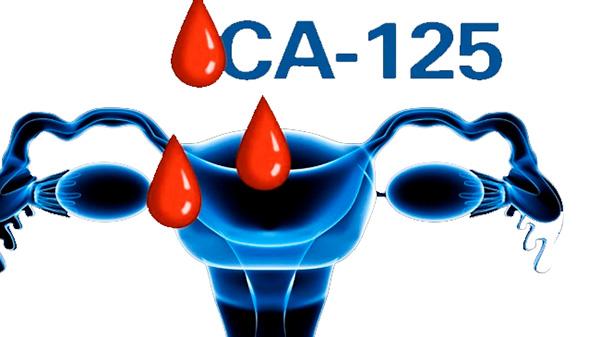Выясняем, что представляет собой онкомаркер СА-125, для чего он нужен и какова его норма при кисте яичников...