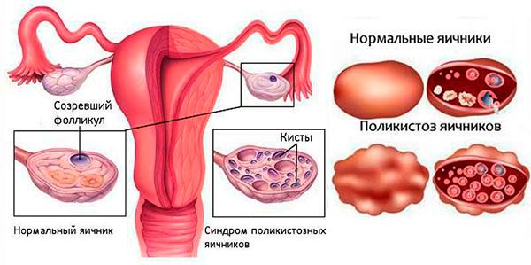 Яичник с поликистозом и в норме