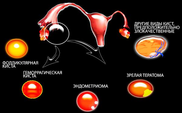 Виды кист яичника
