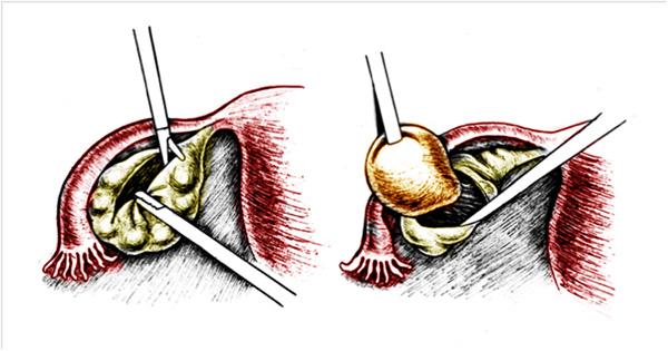 Цистэктомия (схема проведения операции)