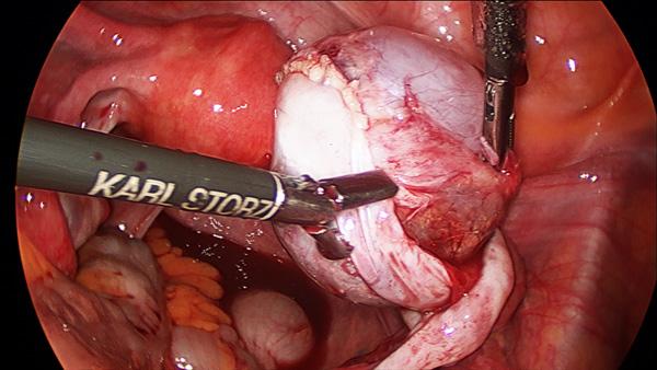 Лапароскопическое удаление кисты яичника