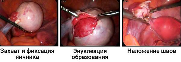 Основные этапы цистэктомии