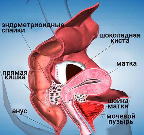 Спаечный процесс в малом тазу прогрессирует вместе с эндометриозом
