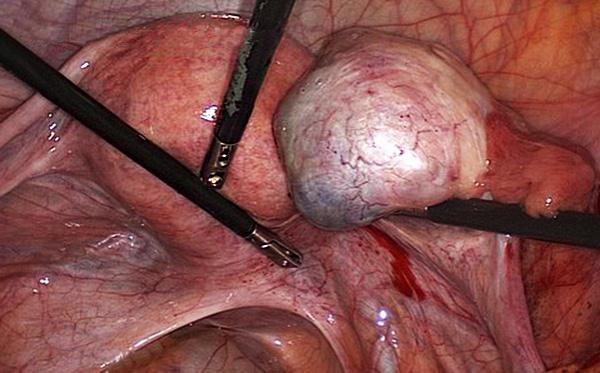 Удаление эндометриомы лапароскопическим методом