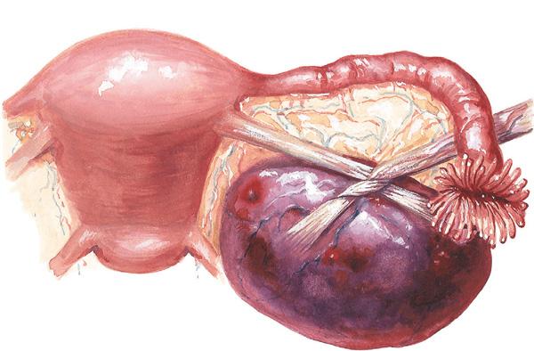 Перекрут ножки кисты яичника - серьезное осложнение