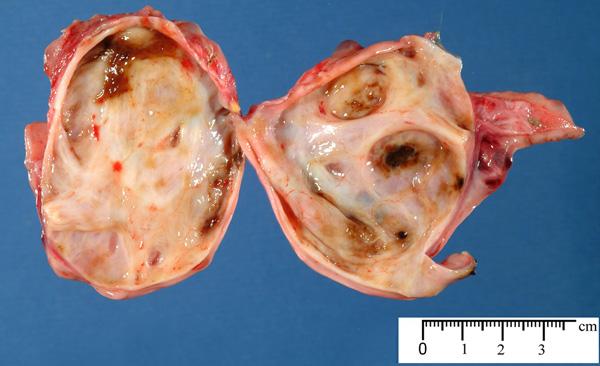 Эндометриоидная киста в разрезе, 3,5 см