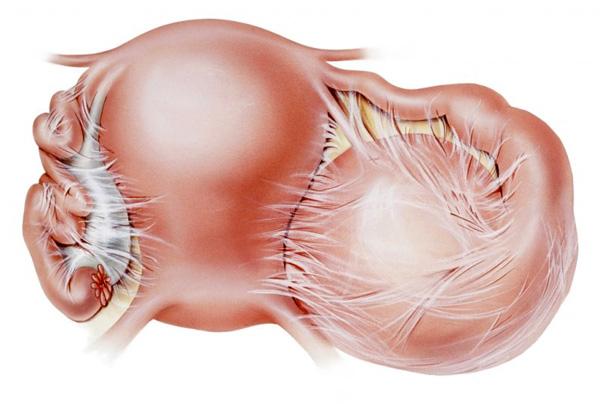 Спаечный процесс нередко возникает после операции