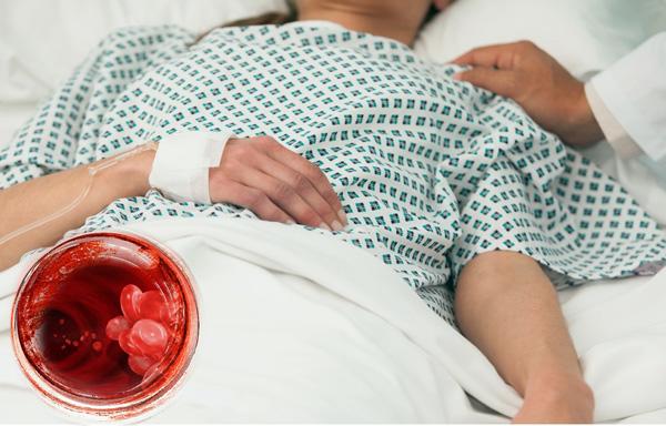 Повторная операция после лапароскопии при тяжелых осложнениях