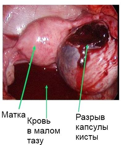 Апоплексия яичника требует немедленной операции